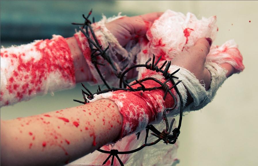 Вскрытые вены фото ужасных ран